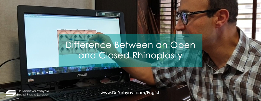 Difference Between an Open and Closed Rhinoplasty
